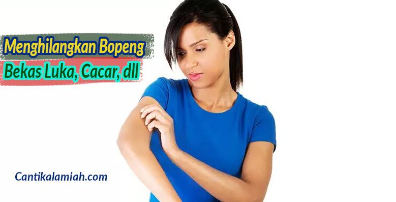 Cara paling efektif menghilangkan bopeng bekas luka cacar, vaksin, dll